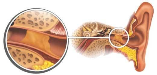 Серная пробка в ухе: симптомы и лечение у взрослых