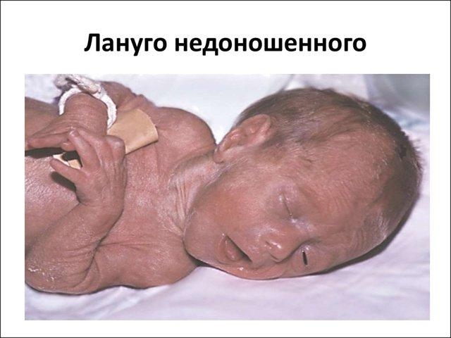 Волосы на ушах новорожденного: симптом или норма