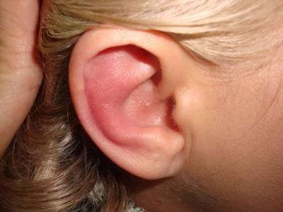 Гиперемия слухового прохода: что это такое и как лечить