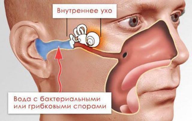 Противогрибковые ушные капли: какие лучше?