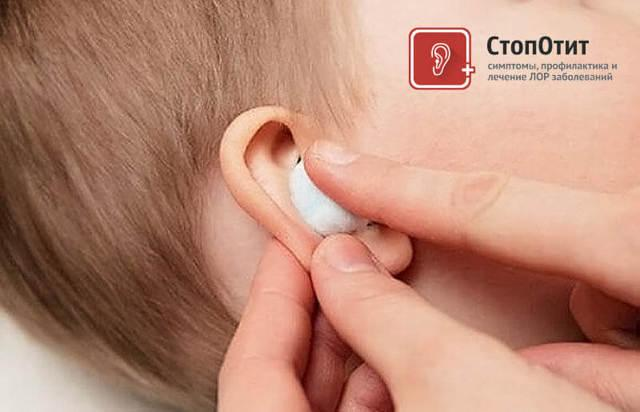 Как делать турунды в ухо: что нужно знать