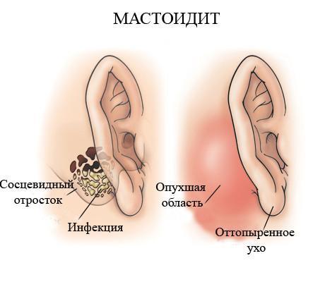 Мастоидит: симптомы, лечение и профилактика