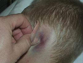 Мокнет за ушами у взрослого: причины и лечение