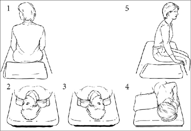 Доброкачественное пароксизмальное позиционное головокружение