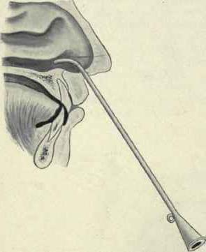 Катетеризация слуховой трубы: как проводится?