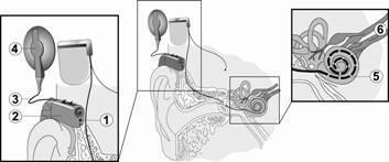 Кохлеарная имплантация: что это такое?