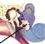 Отосклероз: симптомы и лечение