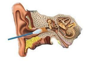Лекарства от ушных пробок: какие средства лучше?