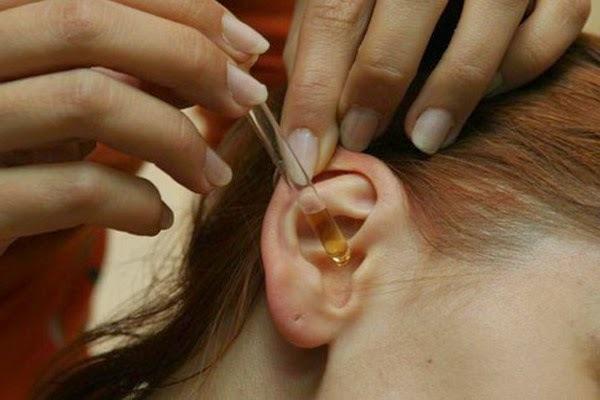 Ушные капли при отите: какие лучше при воспалении у взрослых