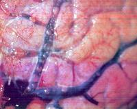 Кессонная болезнь (декомпрессионная болезнь): что это?