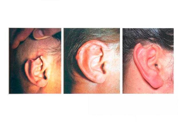 Травмы уха: виды повреждений и первая помощь