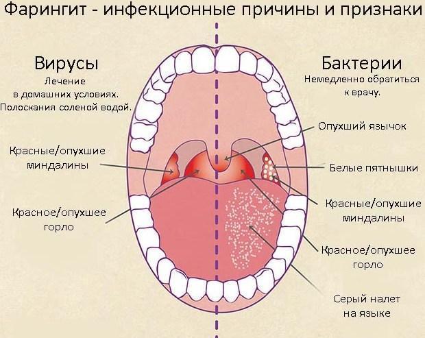 Болит горло и ухо с одной стороны: возможные причины