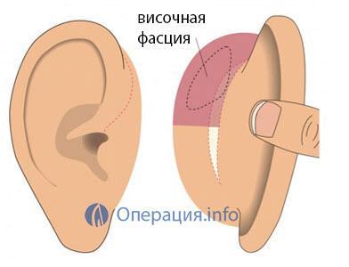 Тимпанопластика уха: показания и противопоказания