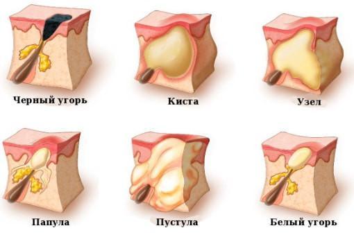 Прыщ в ухе: причины, лечение и что делать, если болит