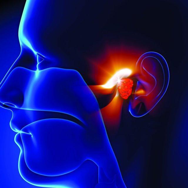 Операция стапедопластика: проведение и последствия