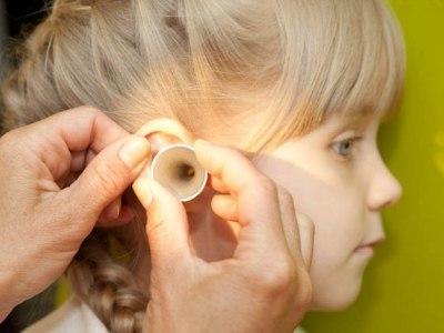 Перекись водорода от ушных пробок: как пользоваться