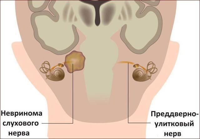 Шум в левом ухе: причины шума в одном ухе