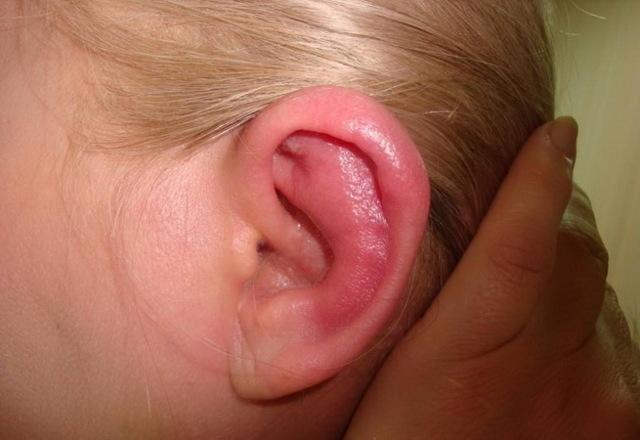 Опухла и болит мочка уха: что делать?