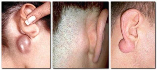 Шарик за ухом: что это и как лечить