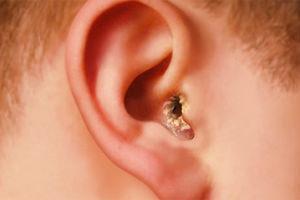Почему в ушах нет серы: причины